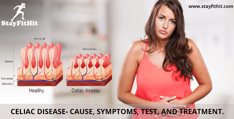 Celiac Disease- Cause, Symptoms, Test, and Treatment.