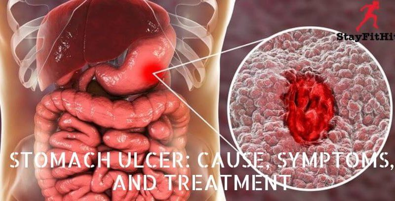 Stomach Ulcer: Cause, Symptoms, and Treatment