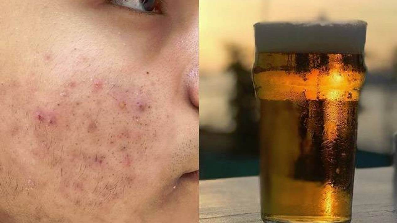 Which alcohol is bad for skincare