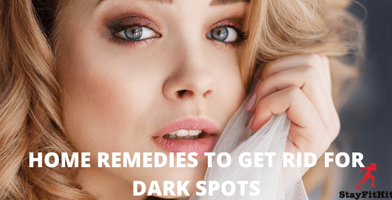 Home Remedies to Get Rid Of Dark Spots Without Expense