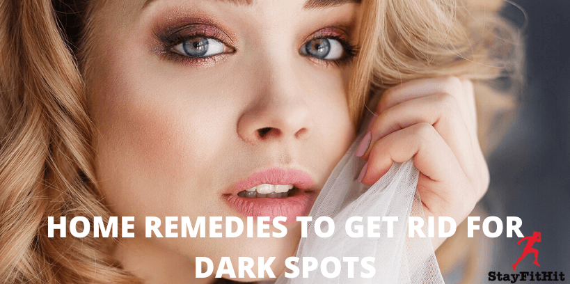 HOME REMEDIES TO GET RID FOR DARK SPOTS (1)